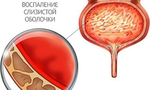 кровь жжение после секса